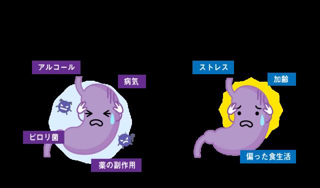 胃の不調の2つの原因